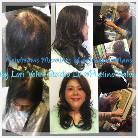 Hairdreams Microlines thinning hair balding solutions Lori Veltri